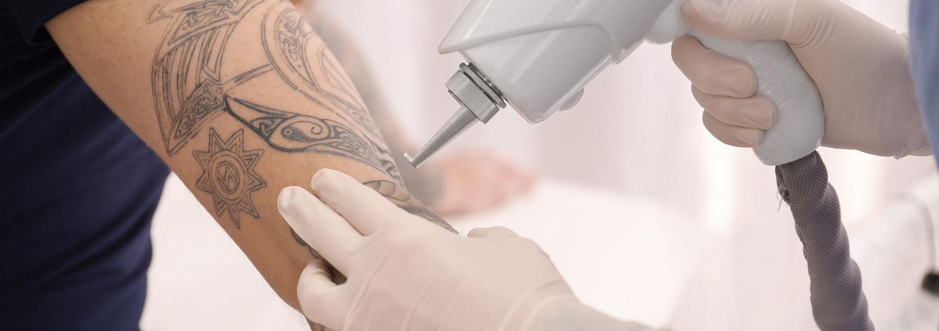 Borrado De Tatuajes Eliminacion Total De Tatuajes Sin Marcas